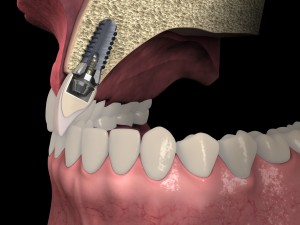 Dental anatomy - Upper incisor longitudinal section with dental implant